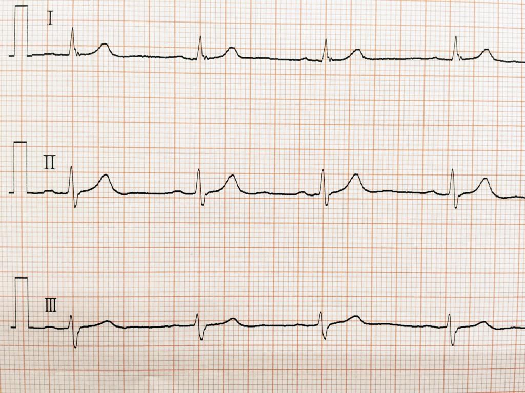 正常洞調律の心電図波形