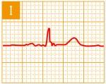 標準12誘導心電図 - 標準12誘導の基本波形 - 1