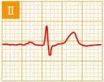 標準12誘導心電図 - 標準12誘導の基本波形 - 2