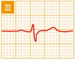 標準12誘導心電図 - 標準12誘導の基本波形 - 3