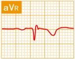 標準12誘導心電図 - 標準12誘導の基本波形 - 4