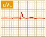標準12誘導心電図 - 標準12誘導の基本波形 - 5