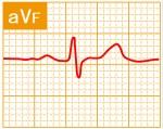 標準12誘導心電図 - 標準12誘導の基本波形 - 6