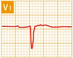 標準12誘導心電図 - 標準12誘導の基本波形 - 7