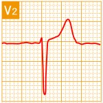 標準12誘導心電図 - 標準12誘導の基本波形 - 8