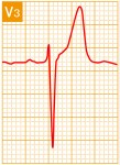 標準12誘導心電図 - 標準12誘導の基本波形 - 9