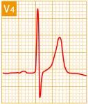 標準12誘導心電図 - 標準12誘導の基本波形 - 10
