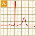 標準12誘導心電図 - 標準12誘導の基本波形 - 11