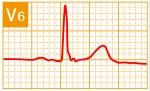 標準12誘導心電図 - 標準12誘導の基本波形 - 12