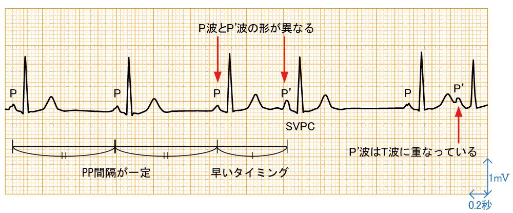 上室期外収縮 - 波形と特徴