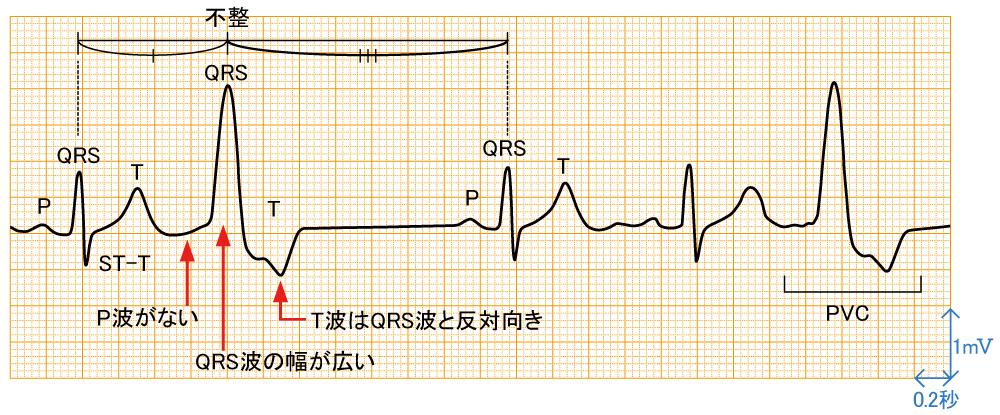 心室期外収縮 - 波形と特徴