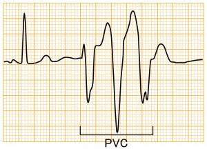 心室期外収縮 - PVC3連発の波形と特徴