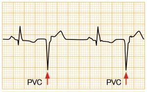 心室期外収縮 - PVC2段脈の波形と特徴