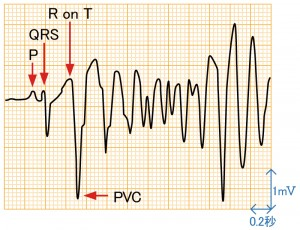心室期外収縮 - R on Tの波形と特徴