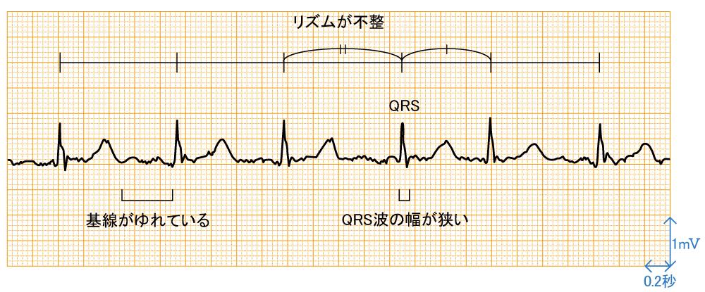 心房細動 - 波形と特徴