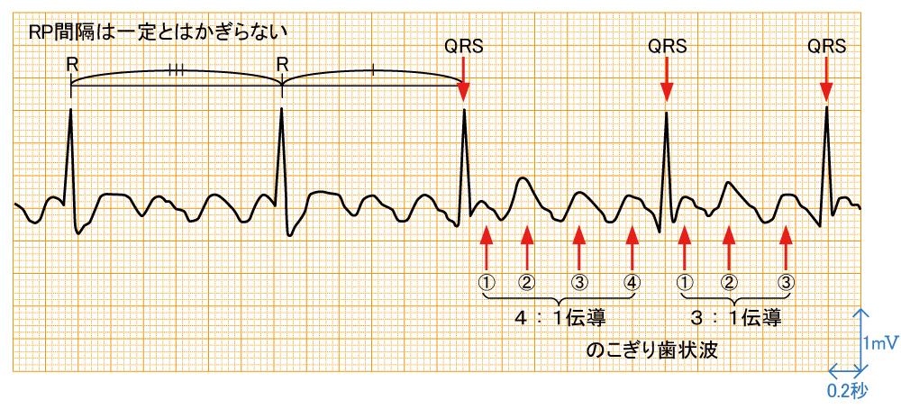 心房粗動 - 波形と特徴