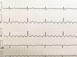 心房粗動の実波形
