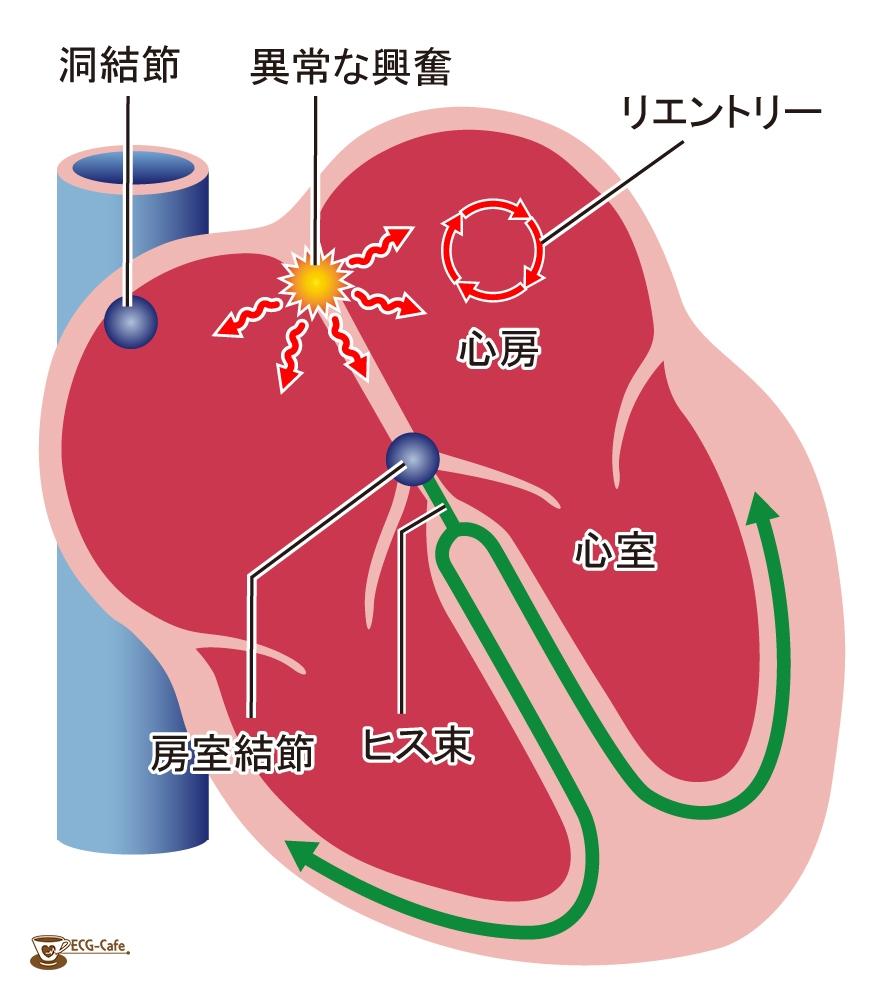 不整脈の治療 薬物治療   不整脈といえば「東京ハー …