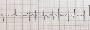 心房頻拍 - 実際の波形