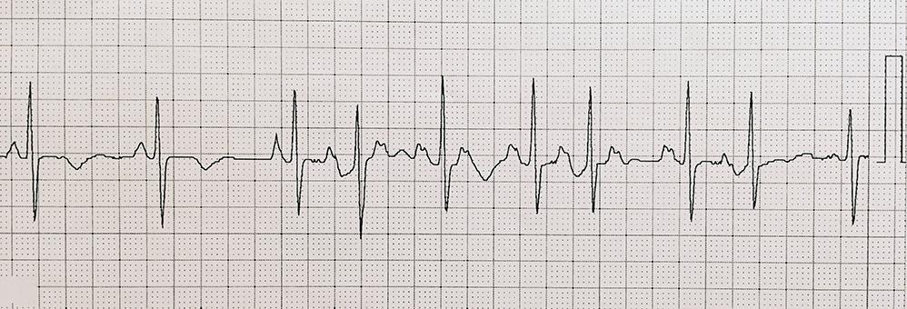 発作性上室性頻拍 – 日本不整脈心電学会