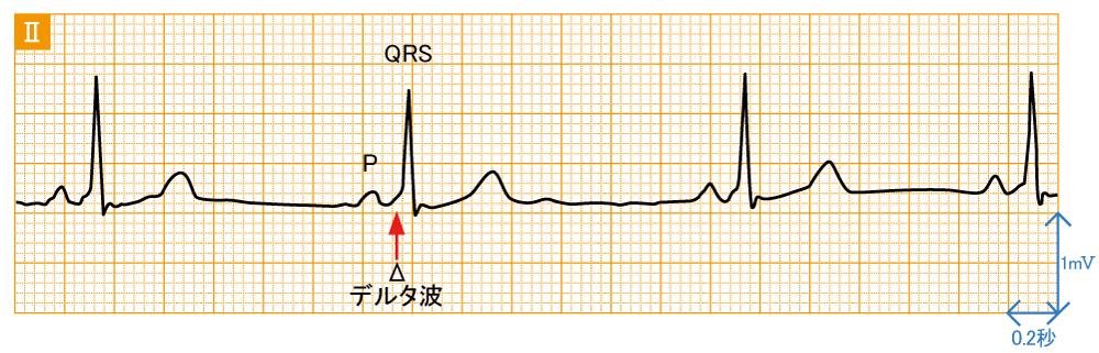 発作性上室頻拍1 - AVRT - 波形と特徴1