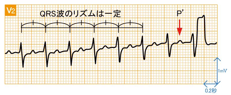 発作性上室頻拍1 - AVRT - 波形と特徴2
