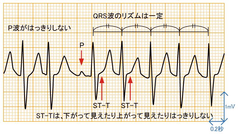 発作性上室頻拍2 - AVNRTの波形と特徴 - 1