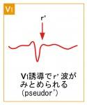 発作性上室頻拍2 - AVNRTの波形と特徴 - 2