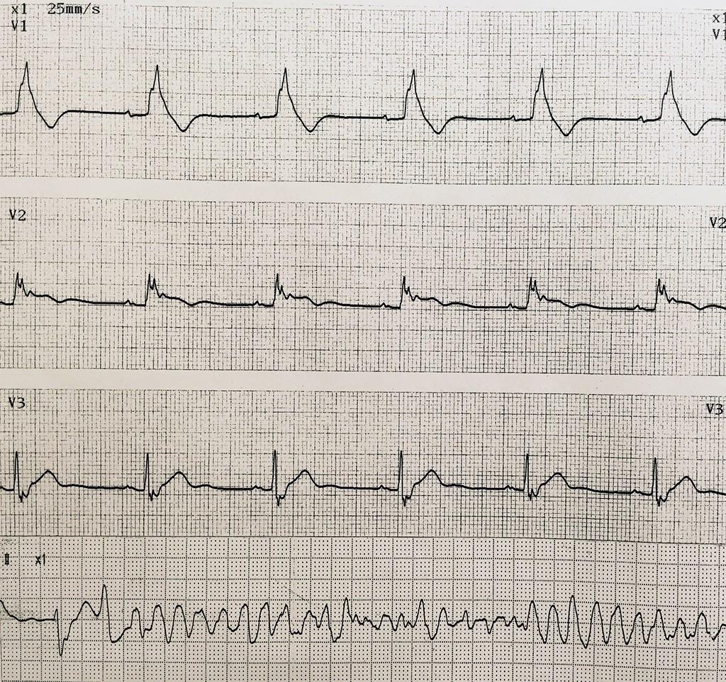 ブルガダ症候群 - 実際の波形