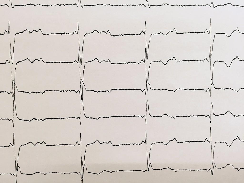 房室ブロック - 実際の波形