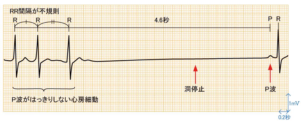 洞不全症候群 - 波形と特徴