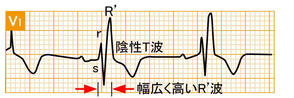 脚ブロック - 完全右脚ブロックの波形と特徴 - 1