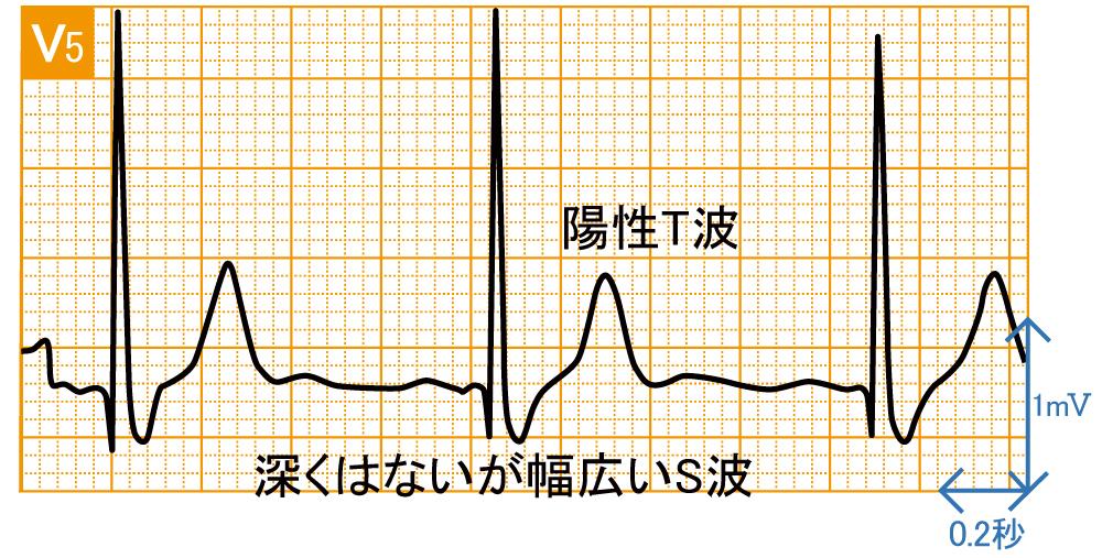 脚ブロック - 完全右脚ブロックの波形と特徴 - 2