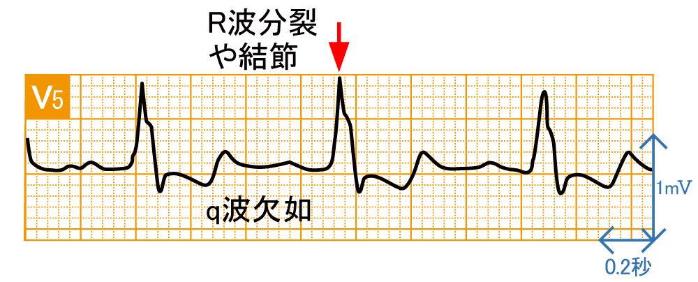 脚ブロック - 完全左脚ブロックの波形と特徴 - 2