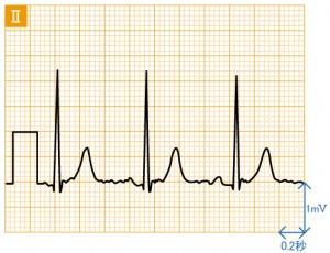 狭心症 - 運動負荷による波形の変化 - 1