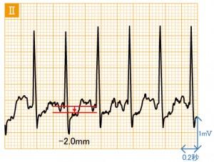 狭心症 - 運動負荷による波形の変化 - 2