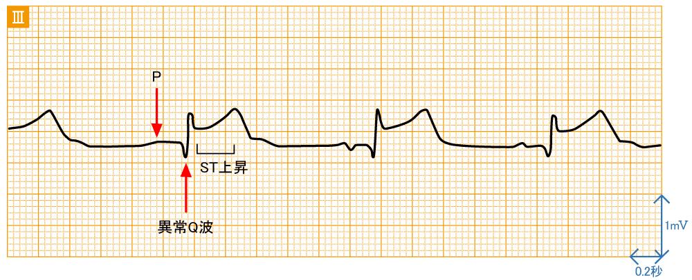 急性心筋梗塞 - 右冠動脈閉塞の波形と特徴