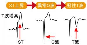 急性心筋梗塞 - 心電図の経時的特徴