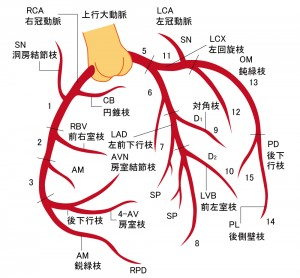 急性心筋梗塞 - 冠動脈平面図