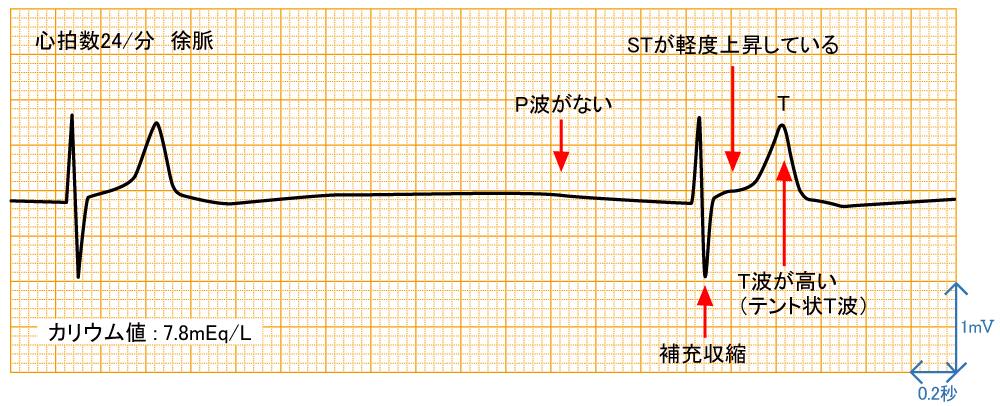 高カリウム結症 - 波形と特徴