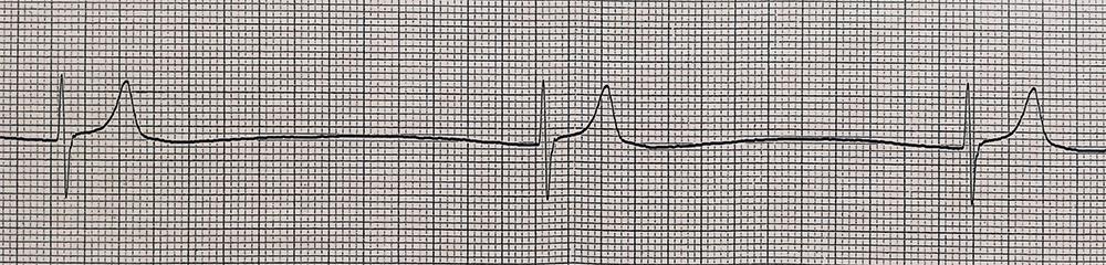 高カリウム血症の実波形