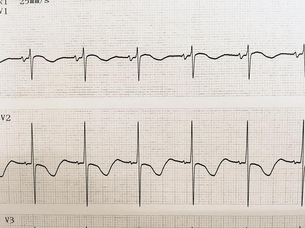 低カリウム血症の実波形