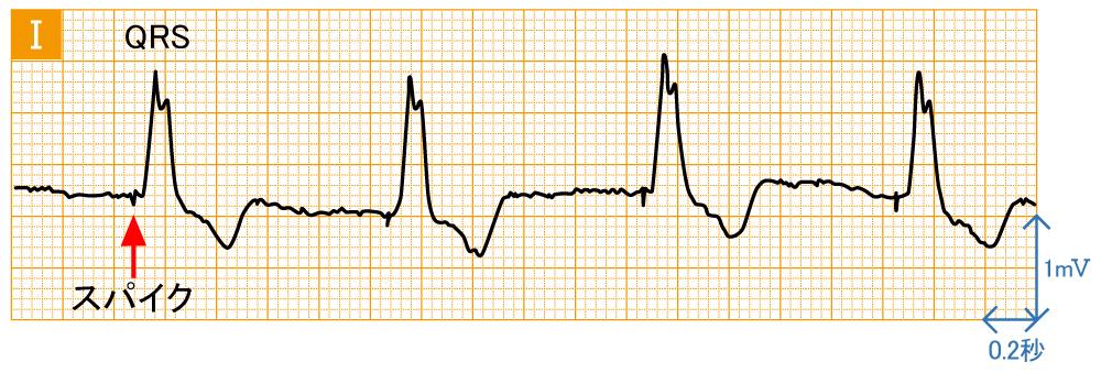 ペースメーカ - VVIの波形と特徴
