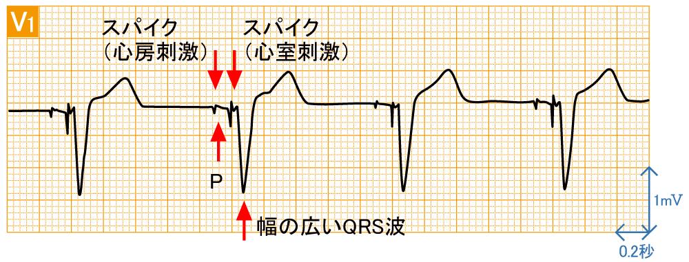 ペースメーカ - DDDの波形と特徴