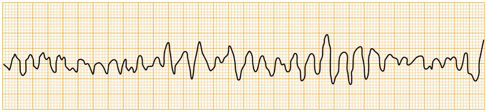 緊急度の高い不整脈 - VF