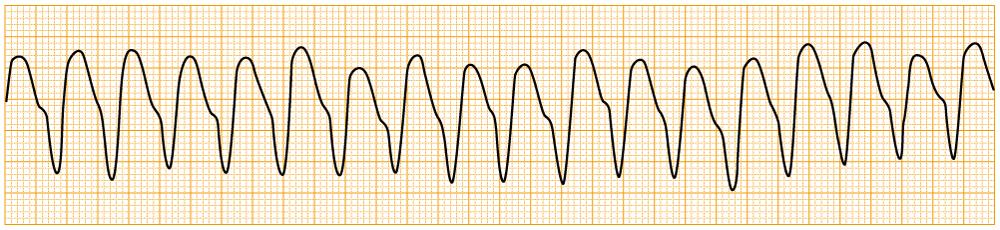 緊急度の高い不整脈 - pulsless VT