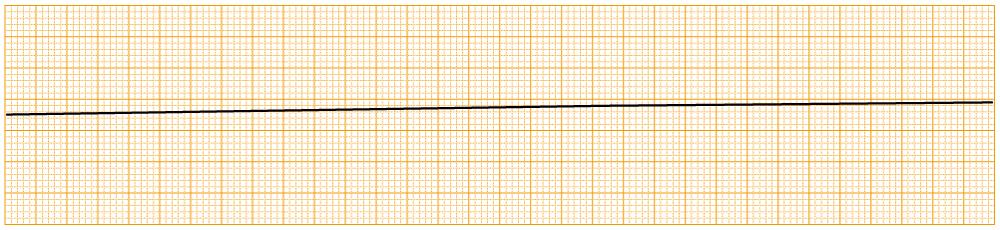 緊急度の高い不整脈 - asystoly