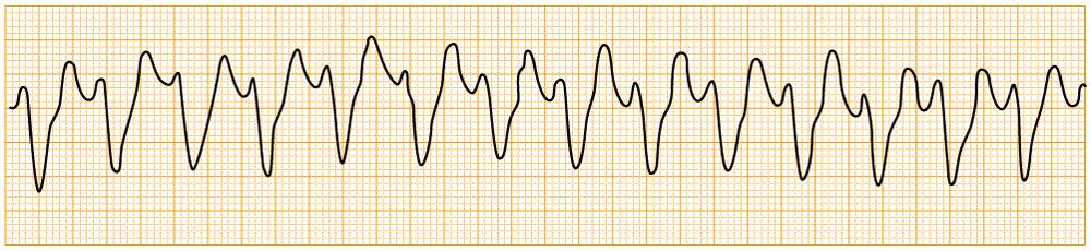 緊急度の高い不整脈 - VT