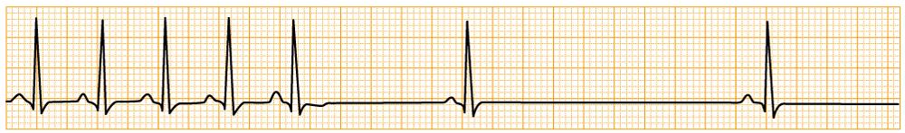 緊急度の高い不整脈 - SSS