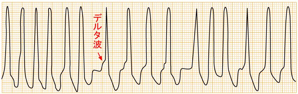緊急度の高い不整脈 - WPW症候群に伴う頻脈性心房細動